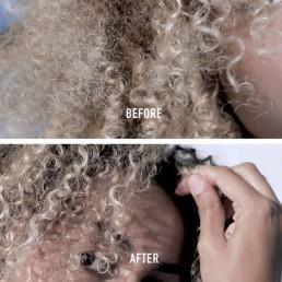 cicaplasme-before-after